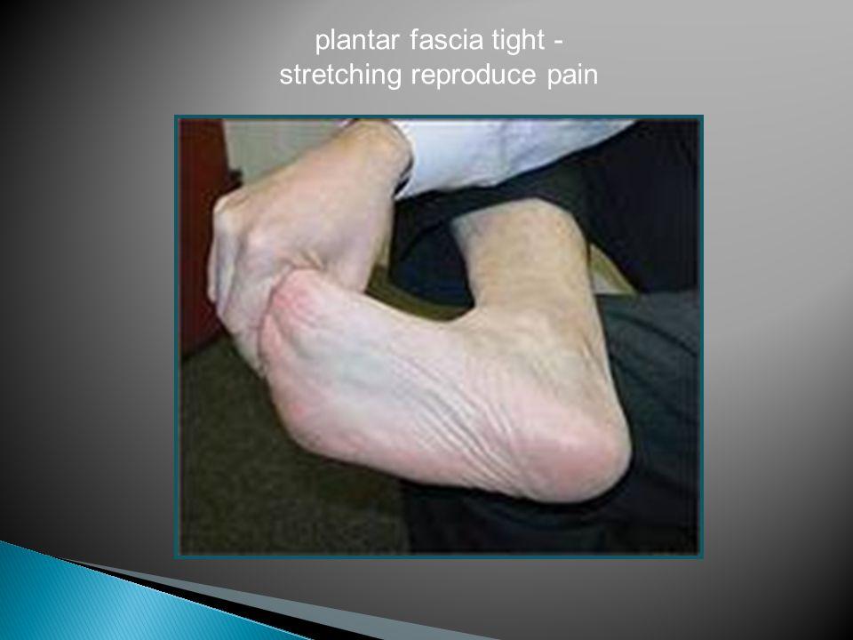 plantar fascia tight - stretching reproduce pain