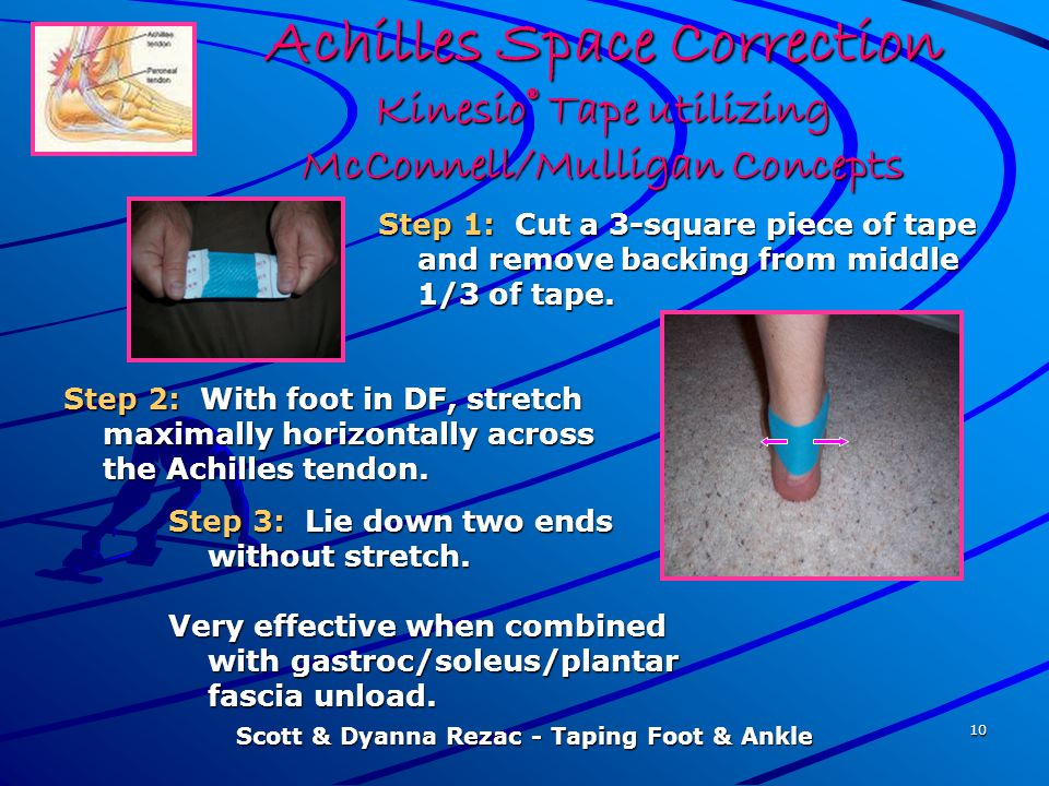 Scott & Dyanna Rezac - Taping Foot & Ankle 10 Achilles Space Correction Kinesio® Tape utilizing McConnell/Mulligan Concepts Step 1: Cut a 3-square pie