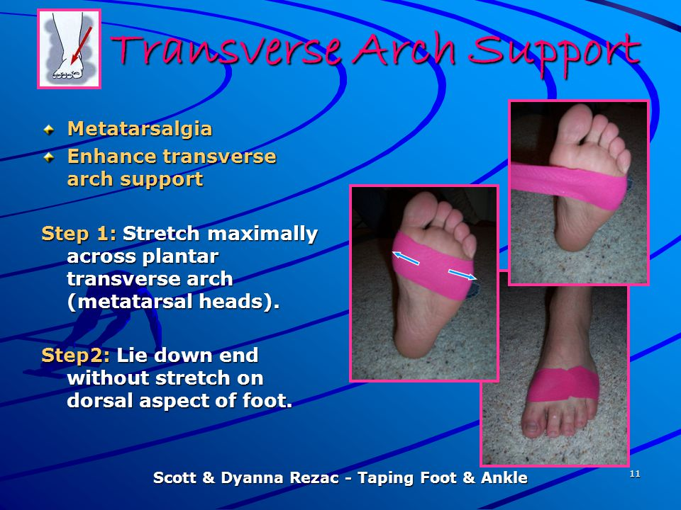 Scott & Dyanna Rezac - Taping Foot & Ankle 11 Transverse Arch Support Metatarsalgia Enhance transverse arch support Step 1: Stretch maximally across p