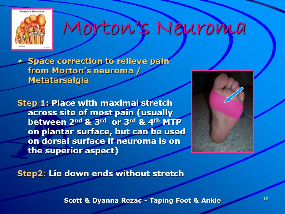 Scott & Dyanna Rezac - Taping Foot & Ankle 12 Morton's Neuroma Space correction to relieve pain from Morton's neuroma / Metatarsalgia Step 1: Place wi