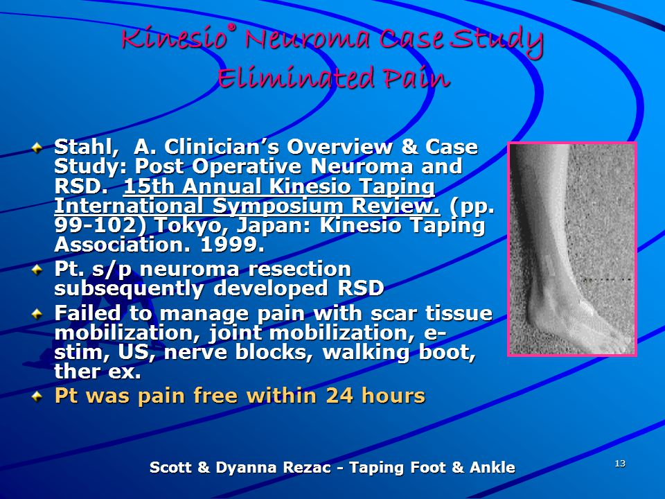 Scott & Dyanna Rezac - Taping Foot & Ankle 13 Kinesio® Neuroma Case Study Eliminated Pain Stahl, A. Clinician's Overview & Case Study: Post Operative