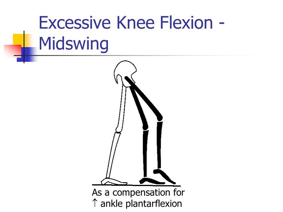 Excessive Knee Flexion - Midswing As a compensation for  ankle plantarflexion