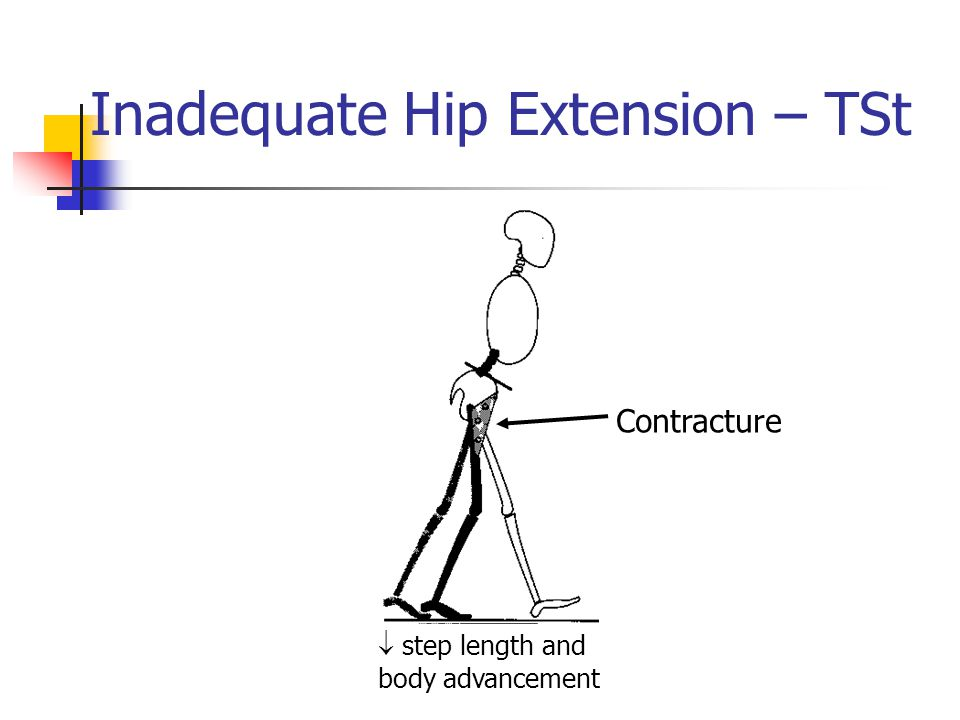 Inadequate Hip Extension – TSt  step length and body advancement Contracture