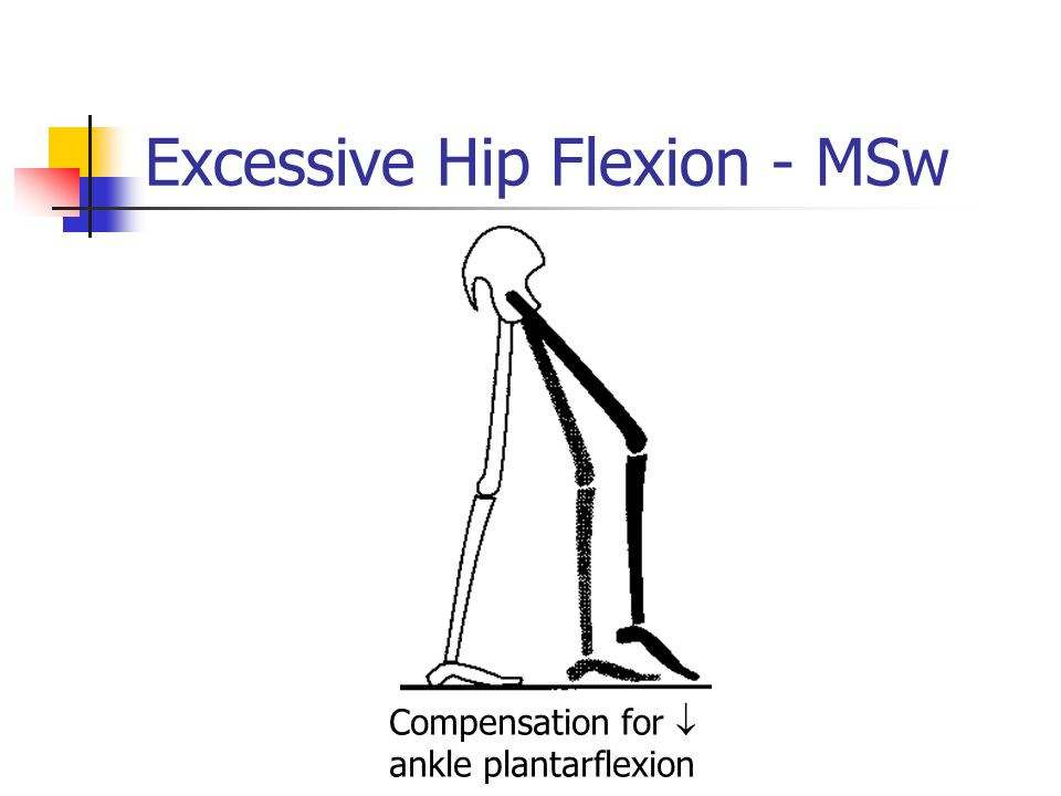 Excessive Hip Flexion - MSw Compensation for  ankle plantarflexion
