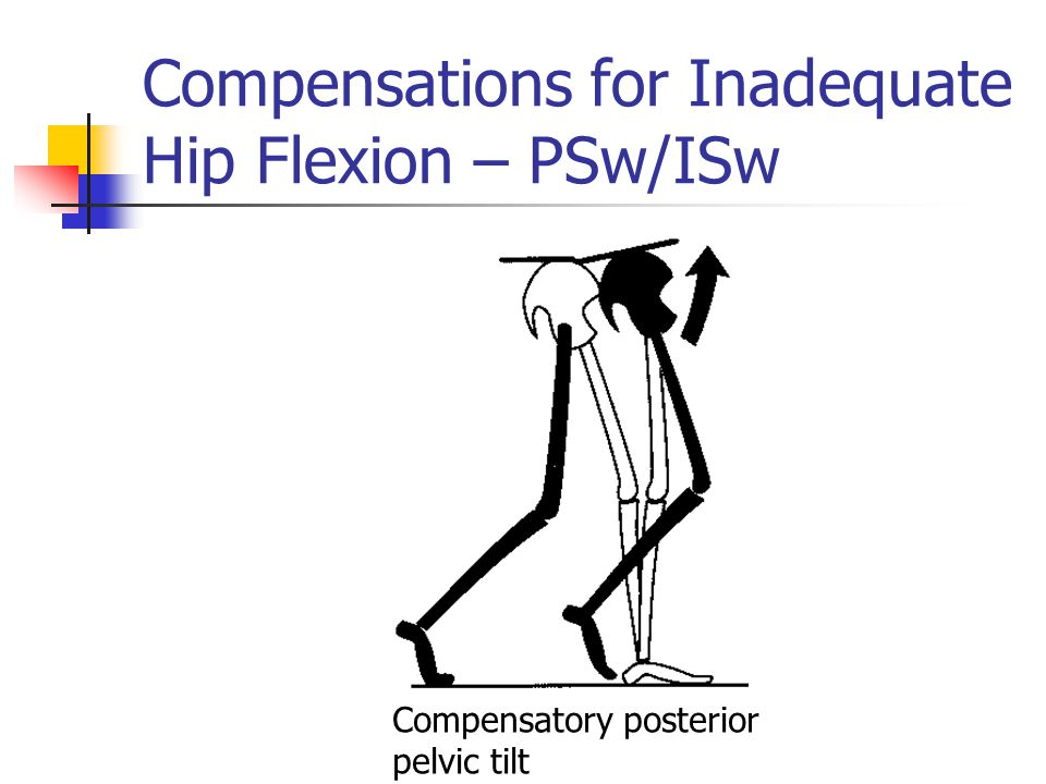 Compensations for Inadequate Hip Flexion – PSw/ISw Compensatory posterior pelvic tilt