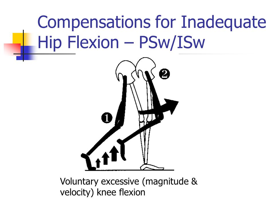 Compensations for Inadequate Hip Flexion – PSw/ISw Voluntary excessive (magnitude & velocity) knee flexion