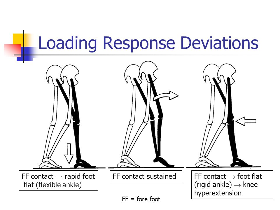 Loading Response Deviations FF contact  rapid foot flat (flexible ankle) FF contact sustained FF contact  foot flat (rigid ankle)  knee hyperextension FF = fore foot