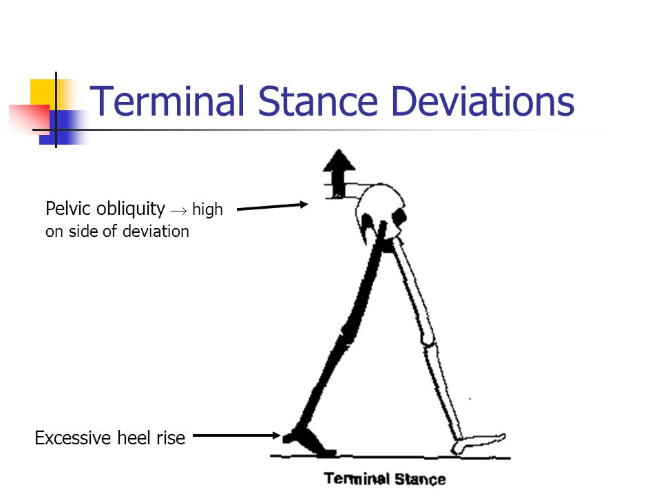 Terminal Stance Deviations Excessive heel rise Pelvic obliquity  high on side of deviation