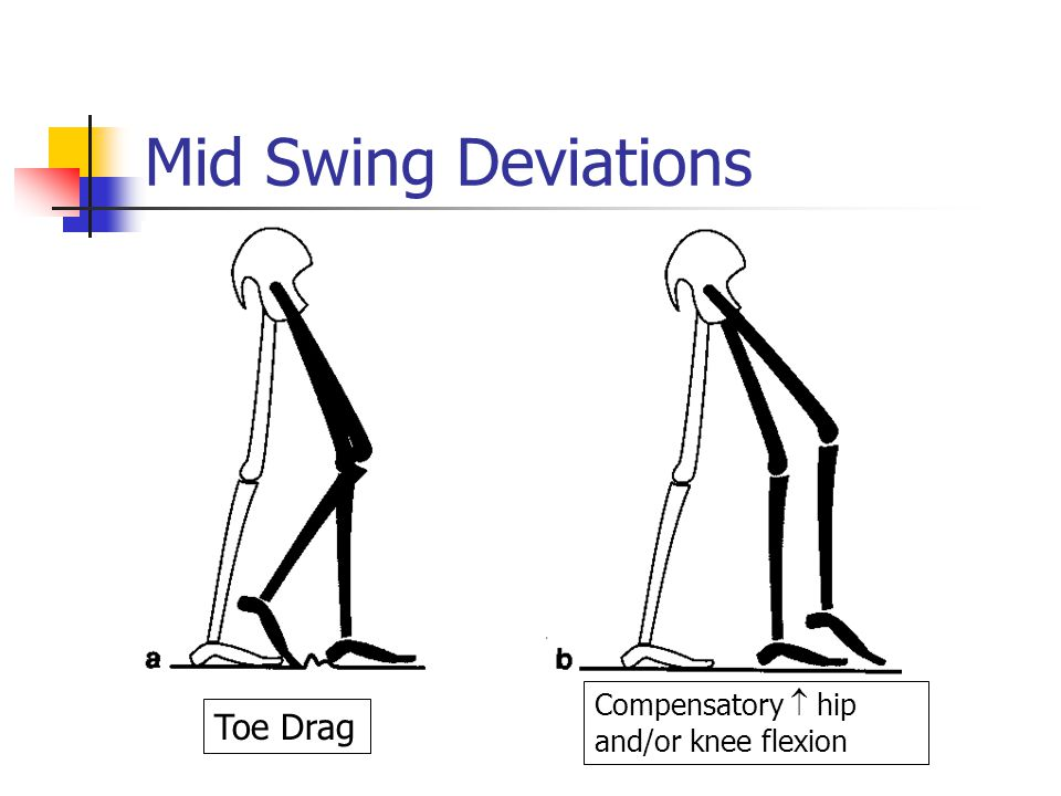 Mid Swing Deviations Toe Drag Compensatory  hip and/or knee flexion