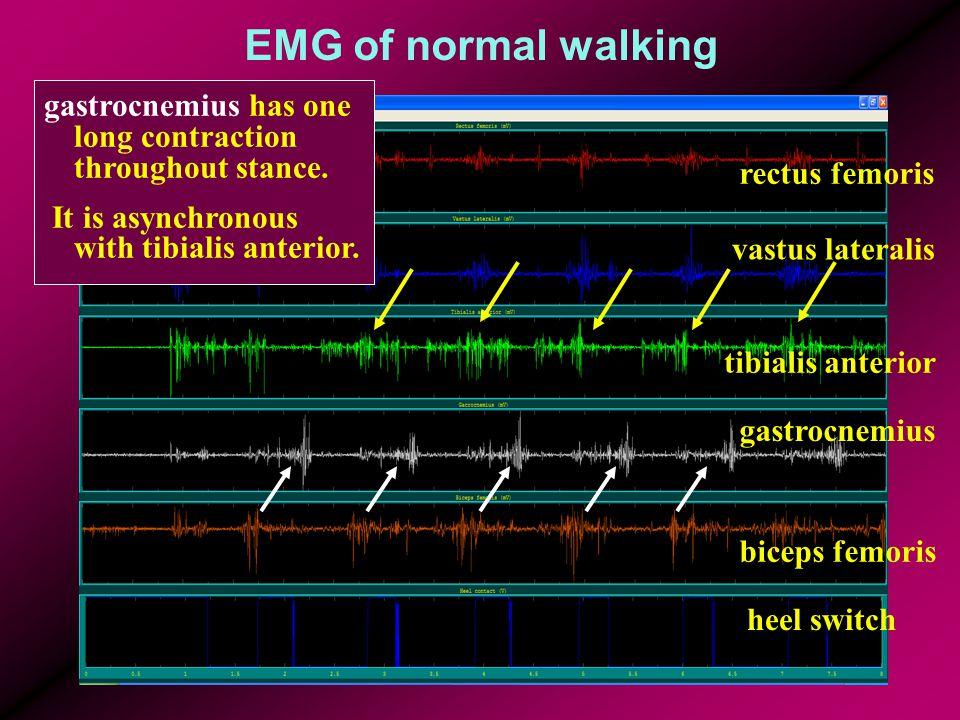 EMG of normal walking rectus femoris vastus lateralis tibialis anterior gastrocnemius biceps femoris heel switch gastrocnemius has one long contraction throughout stance.