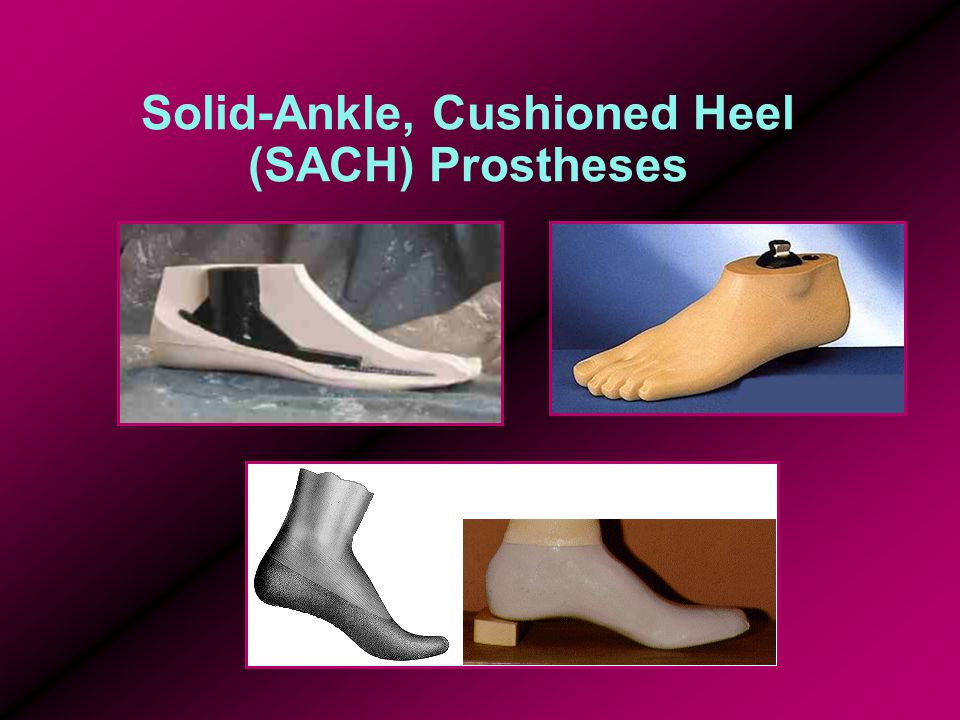 Solid-Ankle, Cushioned Heel (SACH) Prostheses