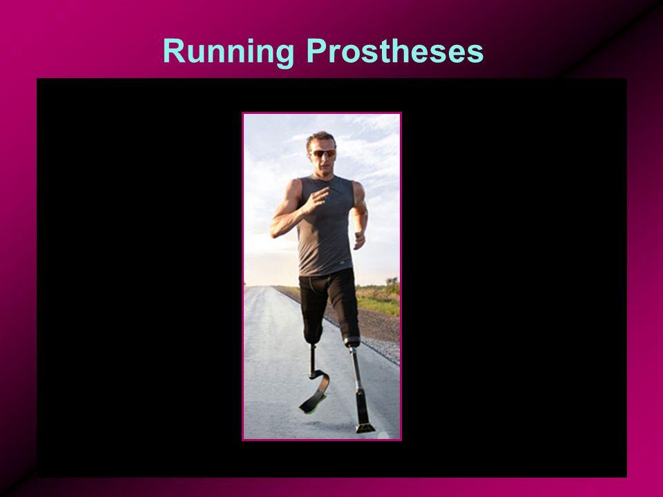 Running Prostheses