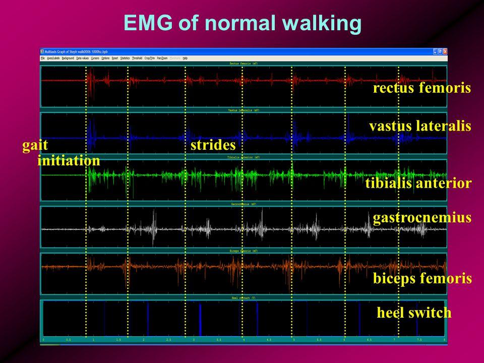 EMG of normal walking gait initiation rectus femoris vastus lateralis tibialis anterior gastrocnemius biceps femoris heel switch strides