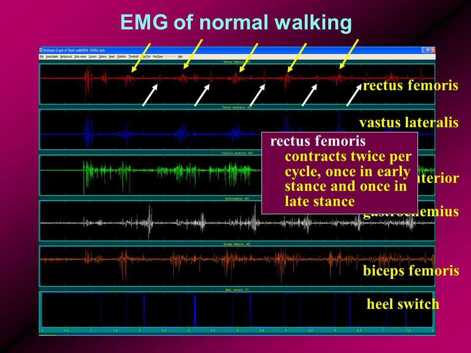 EMG of normal walking rectus femoris vastus lateralis tibialis anterior gastrocnemius biceps femoris heel switch rectus femoris contracts twice per cycle, once in early stance and once in late stance