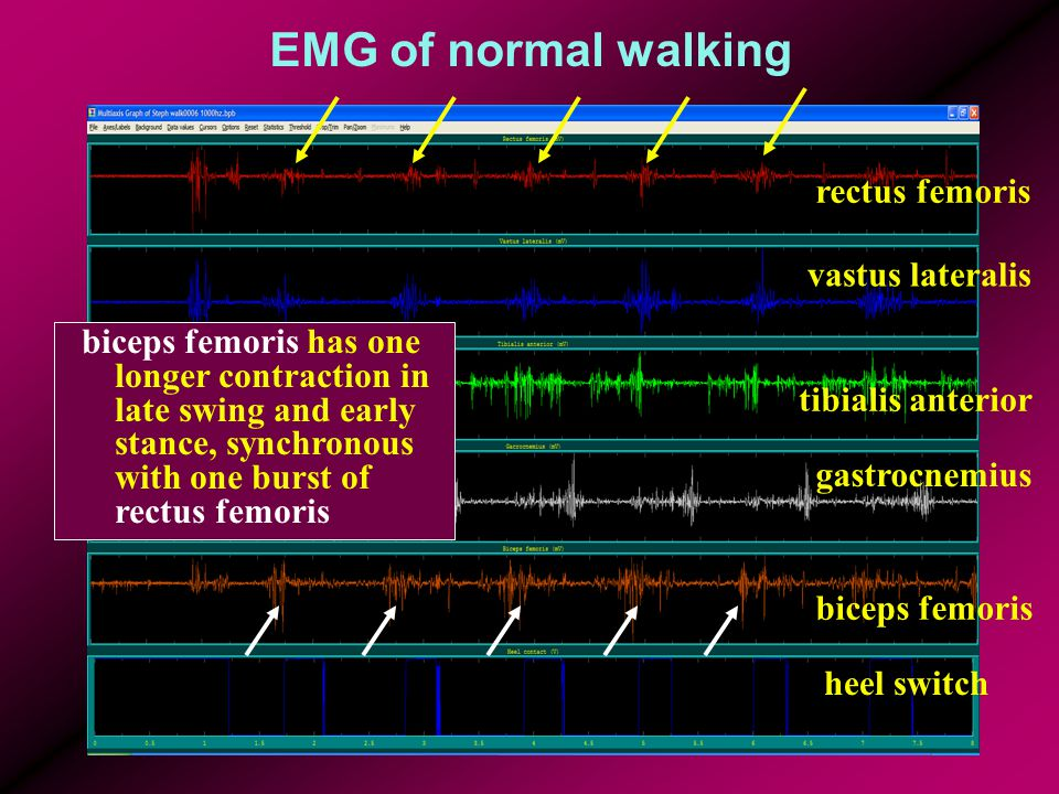 EMG of normal walking rectus femoris vastus lateralis tibialis anterior gastrocnemius biceps femoris heel switch biceps femoris has one longer contraction in late swing and early stance, synchronous with one burst of rectus femoris