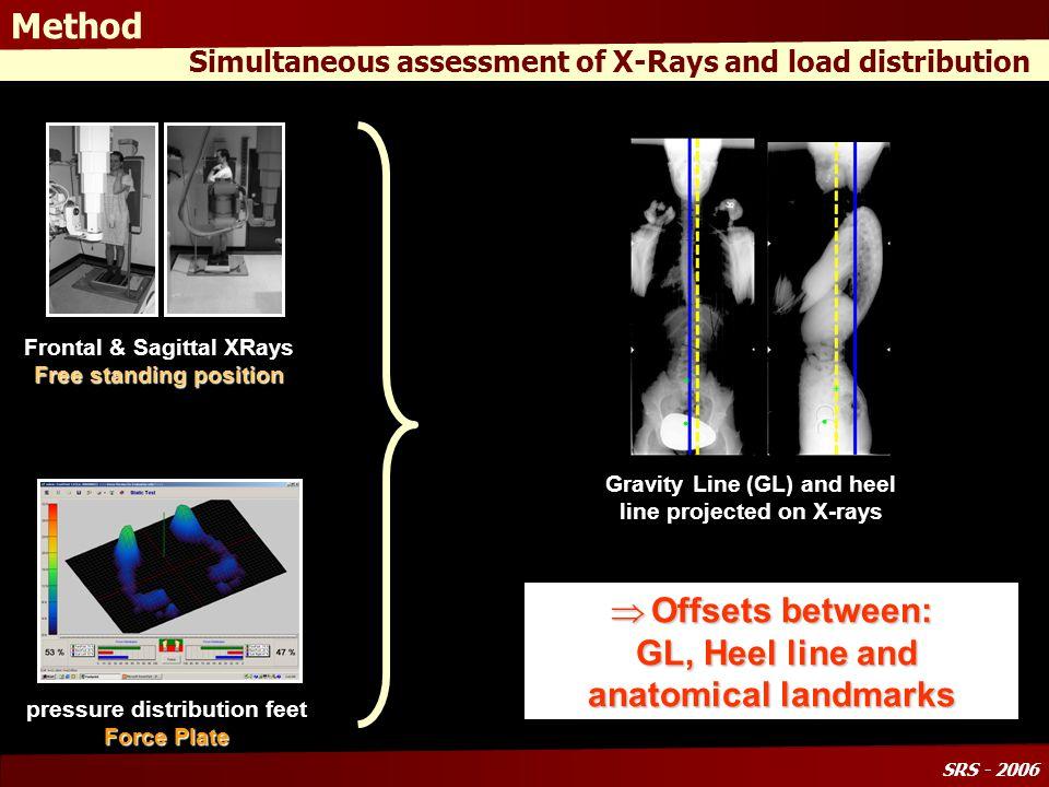 SRS - 2006 X-rays parameters Differences over the 2 groups GroupIncidence Sacral slope Pelvic Tilt LordosisKyphosis Global inclination SVA N 51381358-43-120 S 60342746-51-38 Significant differences Pelvic Incidence increases Pelvis Tilt increases* Lordosis Decreases Forward Trunk Flexion SVA increases* * Inclusion criteria