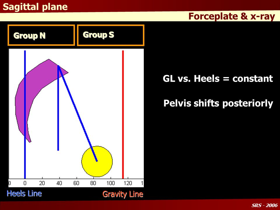 SRS - 2006 Sagittal plane Forceplate & x-ray Group N Group S Pelvic Parameters: Pelvic Incidence increases Pelvic Tilt increases* Spinal Parameters: Trunk tilts forward GLParameters: GL - Heels offset does not change Pelvis shifts backward Lordosis decreases SVA increases * Increasing C7 plumbline and pelvic retroversion * Inclusion criteria GL Heels Line