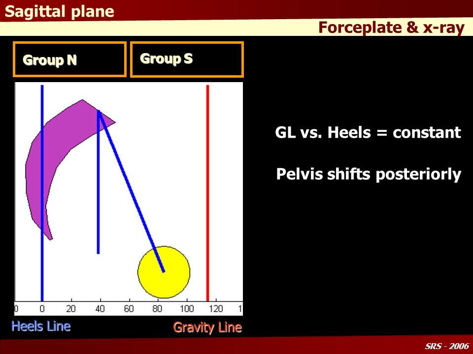 SRS - 2006 Sagittal plane Forceplate & x-ray Group N Group S Gravity Line Heels Line GL vs.