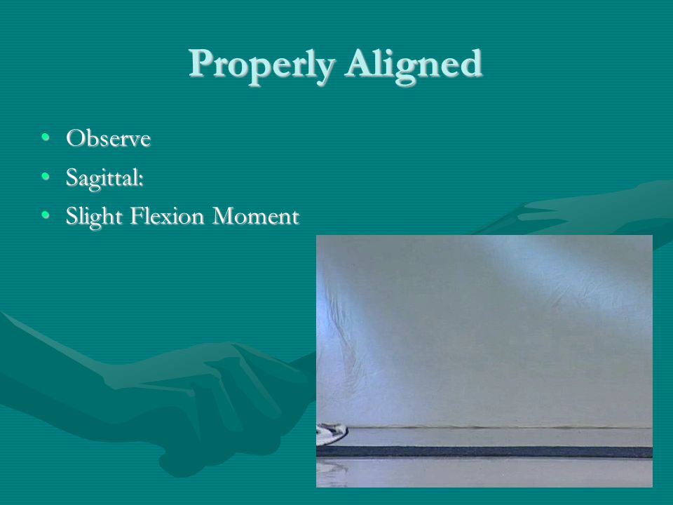 Properly Aligned ObserveObserve Sagittal:Sagittal: Slight Flexion MomentSlight Flexion Moment