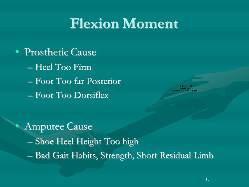 18 Flexion Moment Prosthetic CauseProsthetic Cause –Heel Too Firm –Foot Too far Posterior –Foot Too Dorsiflex Amputee CauseAmputee Cause –Shoe Heel Height Too high –Bad Gait Habits, Strength, Short Residual Limb 18