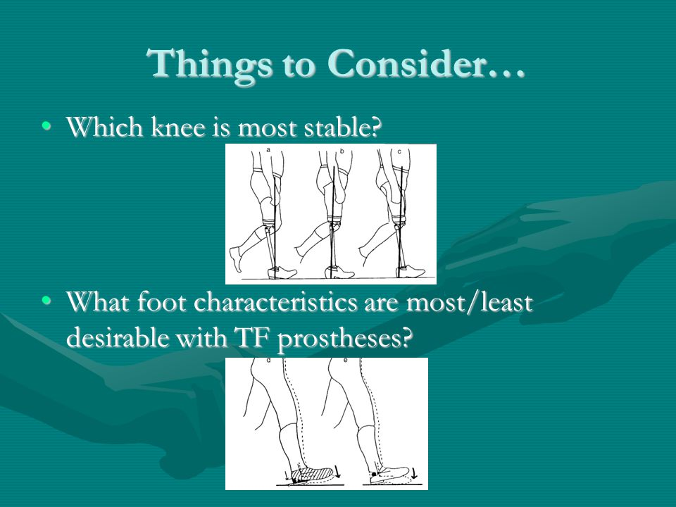 Things to Consider… Which knee is most stable?Which knee is most stable.