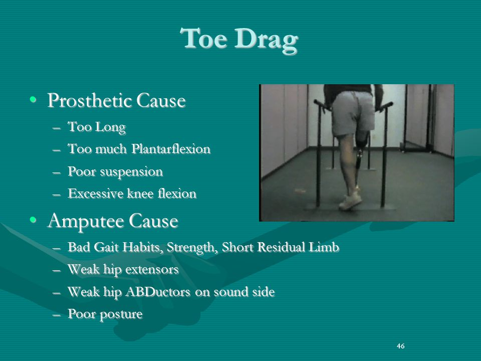 46 Prosthetic CauseProsthetic Cause –Too Long –Too much Plantarflexion –Poor suspension –Excessive knee flexion Amputee CauseAmputee Cause –Bad Gait Habits, Strength, Short Residual Limb –Weak hip extensors –Weak hip ABDuctors on sound side –Poor posture 46 Toe Drag