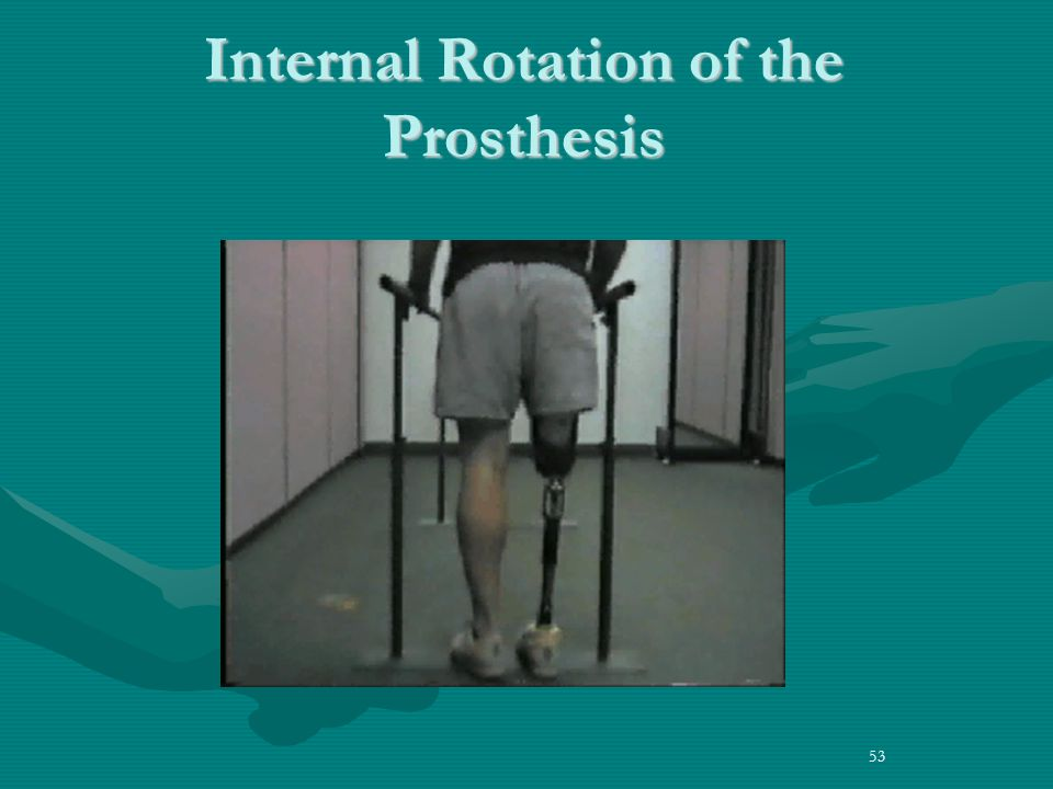 53 Internal Rotation of the Prosthesis