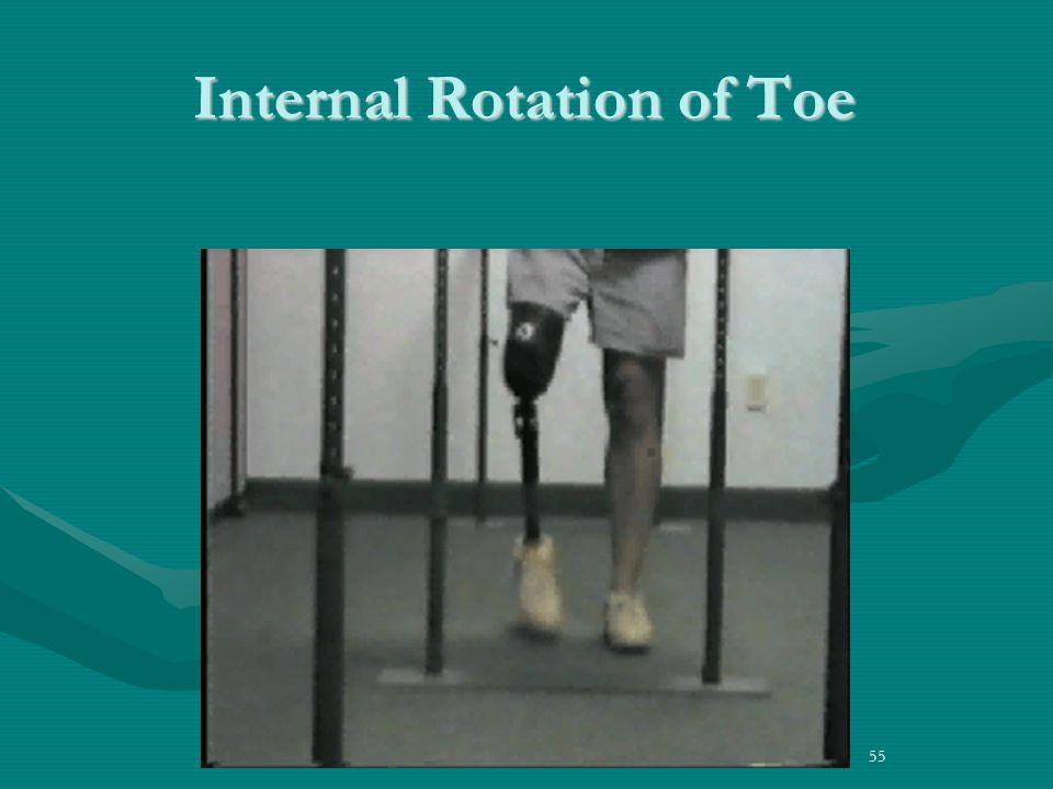 55 Internal Rotation of Toe