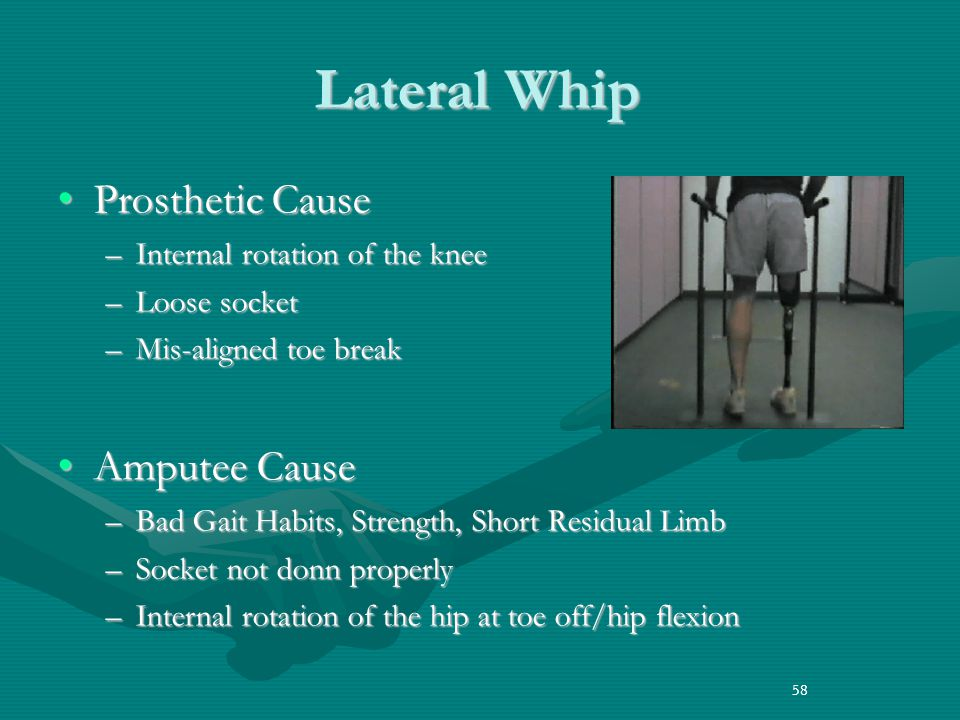 58 Lateral Whip Prosthetic CauseProsthetic Cause –Internal rotation of the knee –Loose socket –Mis-aligned toe break Amputee CauseAmputee Cause –Bad Gait Habits, Strength, Short Residual Limb –Socket not donn properly –Internal rotation of the hip at toe off/hip flexion 58