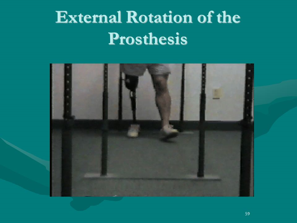59 External Rotation of the Prosthesis