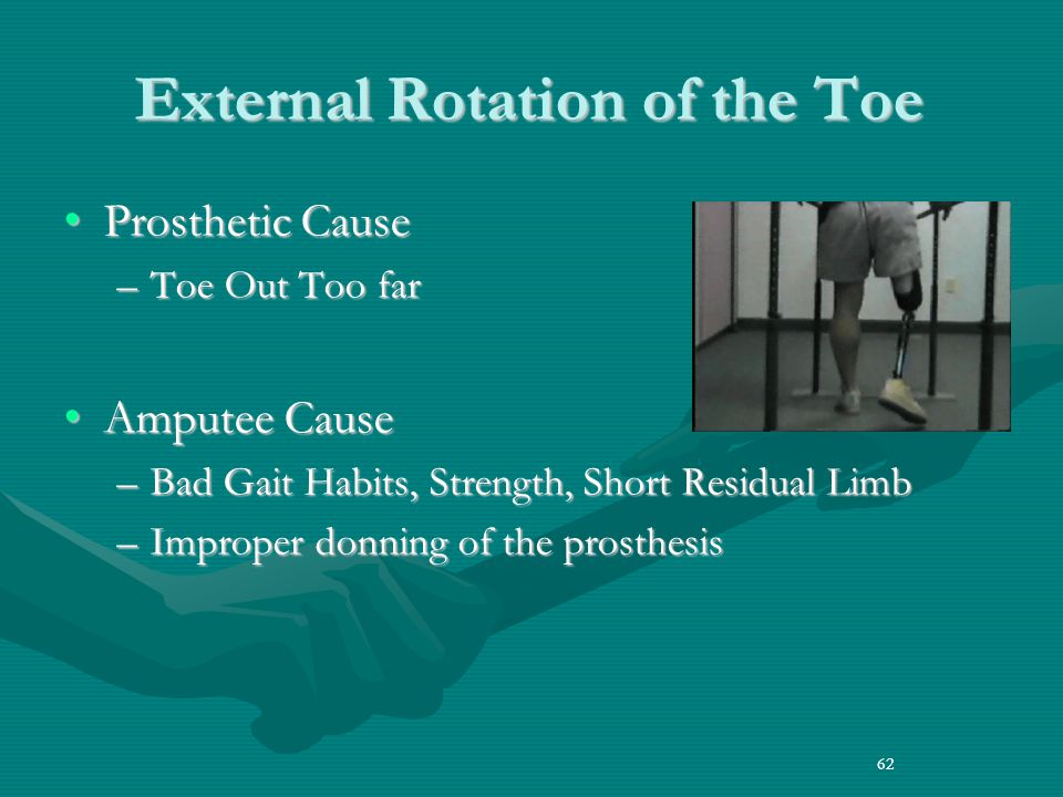 62 External Rotation of the Toe Prosthetic CauseProsthetic Cause –Toe Out Too far Amputee CauseAmputee Cause –Bad Gait Habits, Strength, Short Residual Limb –Improper donning of the prosthesis 62