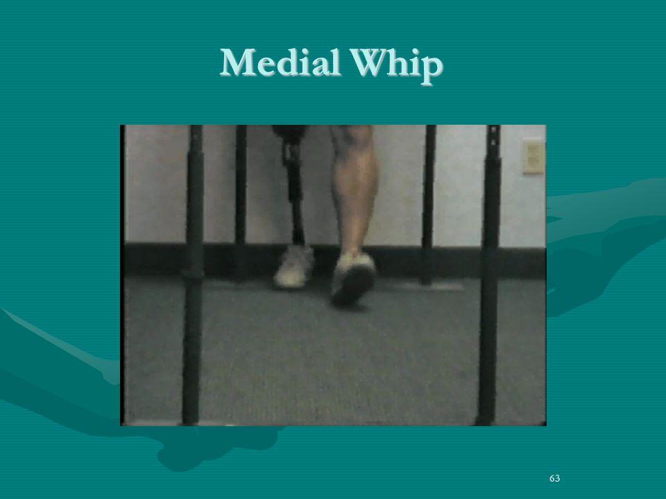 63 Medial Whip
