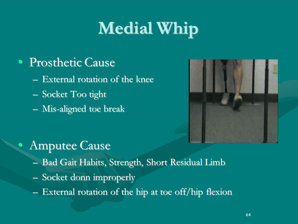 64 Medial Whip Prosthetic CauseProsthetic Cause –External rotation of the knee –Socket Too tight –Mis-aligned toe break Amputee CauseAmputee Cause –Bad Gait Habits, Strength, Short Residual Limb –Socket donn improperly –External rotation of the hip at toe off/hip flexion 64