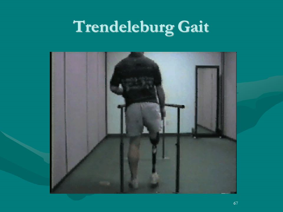 67 Trendeleburg Gait