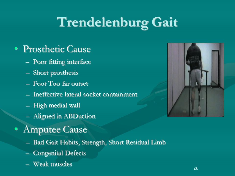 68 Trendelenburg Gait Prosthetic CauseProsthetic Cause –Poor fitting interface –Short prosthesis –Foot Too far outset –Ineffective lateral socket containment –High medial wall –Aligned in ABDuction Amputee CauseAmputee Cause –Bad Gait Habits, Strength, Short Residual Limb –Congenital Defects –Weak muscles 68