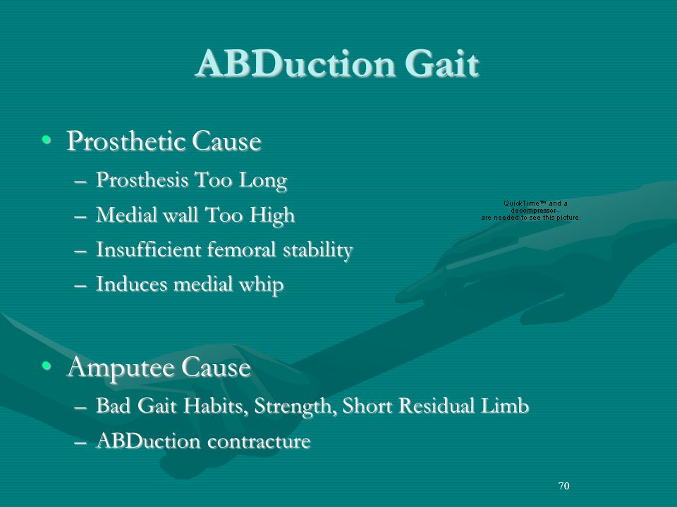 70 ABDuction Gait Prosthetic CauseProsthetic Cause –Prosthesis Too Long –Medial wall Too High –Insufficient femoral stability –Induces medial whip Amputee CauseAmputee Cause –Bad Gait Habits, Strength, Short Residual Limb –ABDuction contracture 70
