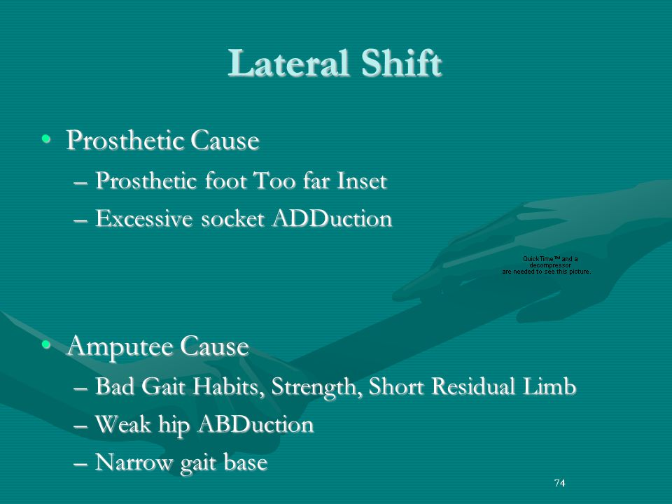 74 Lateral Shift Prosthetic CauseProsthetic Cause –Prosthetic foot Too far Inset –Excessive socket ADDuction Amputee CauseAmputee Cause –Bad Gait Habits, Strength, Short Residual Limb –Weak hip ABDuction –Narrow gait base 74