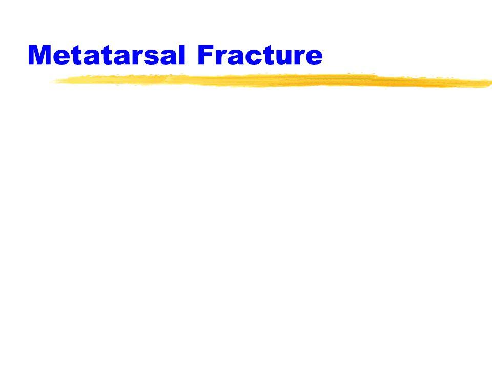 Jones Fracture zManagement ycast 3-6 weeks