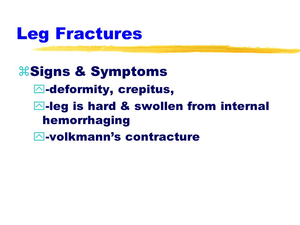 Leg Fractures zfibula=middle third ztibia=lower third zEtiology y-direct vs. indirect