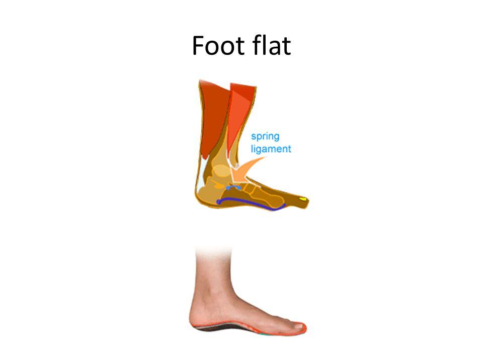 Foot flat