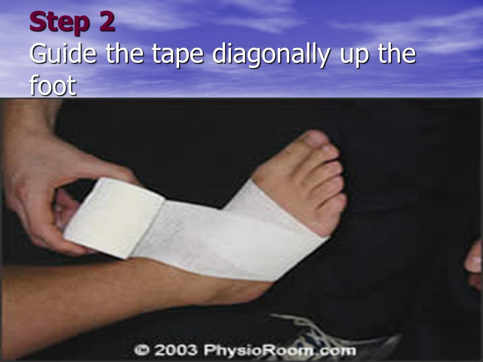 Step 2 Guide the tape diagonally up the foot