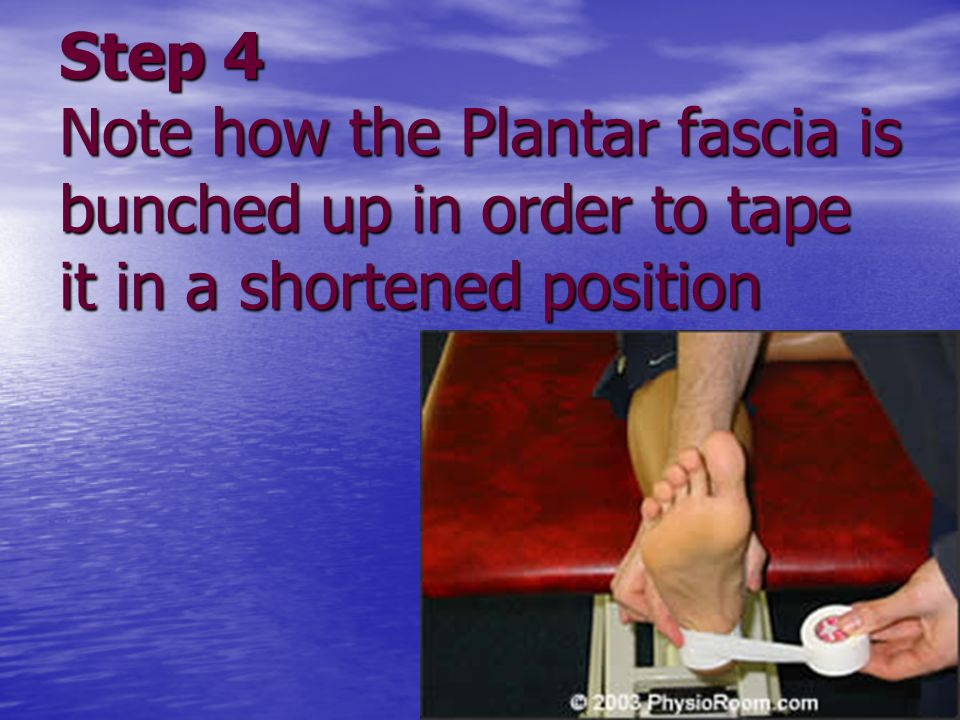 Step 4 Note how the Plantar fascia is bunched up in order to tape it in a shortened position