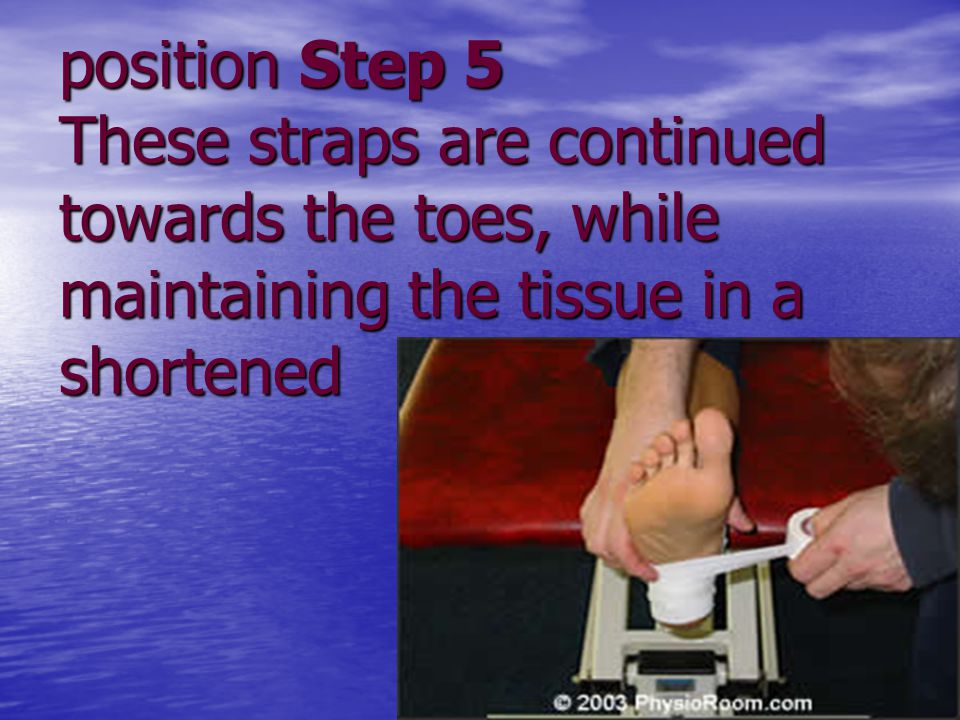 position Step 5 These straps are continued towards the toes, while maintaining the tissue in a shortened