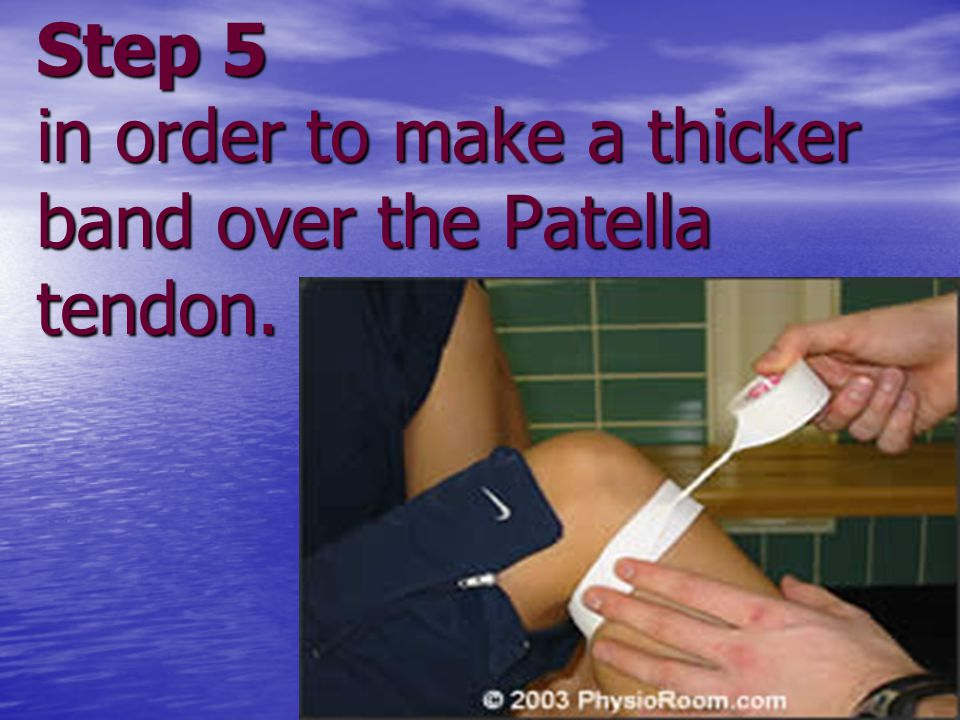Step 5 in order to make a thicker band over the Patella tendon.