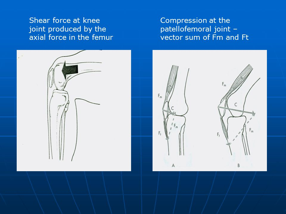 Shear force at knee joint produced by the axial force in the femur Compression at the patellofemoral joint – vector sum of Fm and Ft