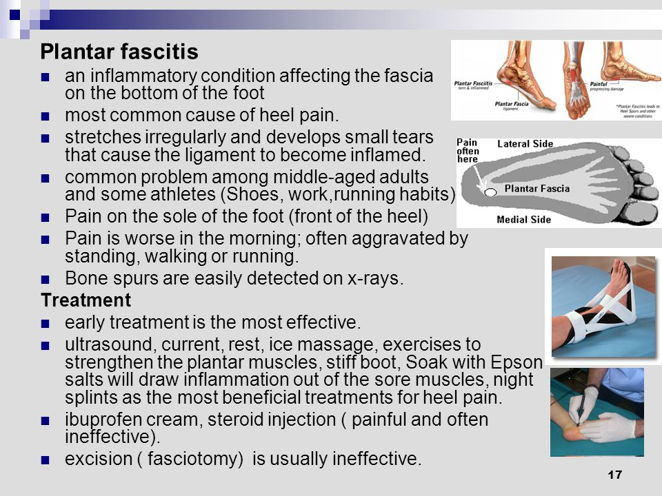 17 Plantar fascitis an inflammatory condition affecting the fascia on the bottom of the foot most common cause of heel pain.