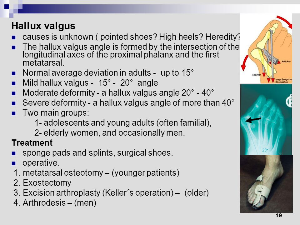 19 Hallux valgus causes is unknown ( pointed shoes.