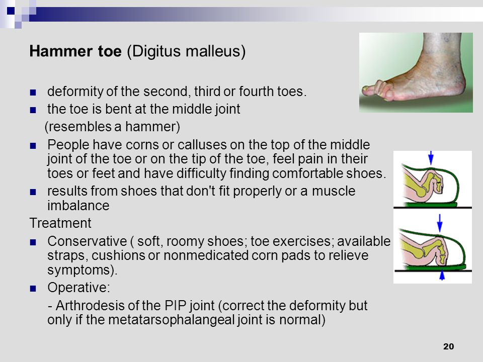 20 Hammer toe (Digitus malleus) deformity of the second, third or fourth toes.