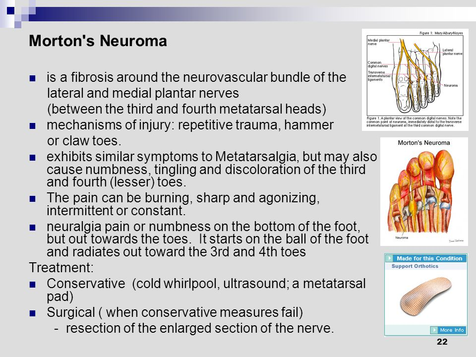 22 Morton s Neuroma is a fibrosis around the neurovascular bundle of the lateral and medial plantar nerves (between the third and fourth metatarsal heads) mechanisms of injury: repetitive trauma, hammer or claw toes.