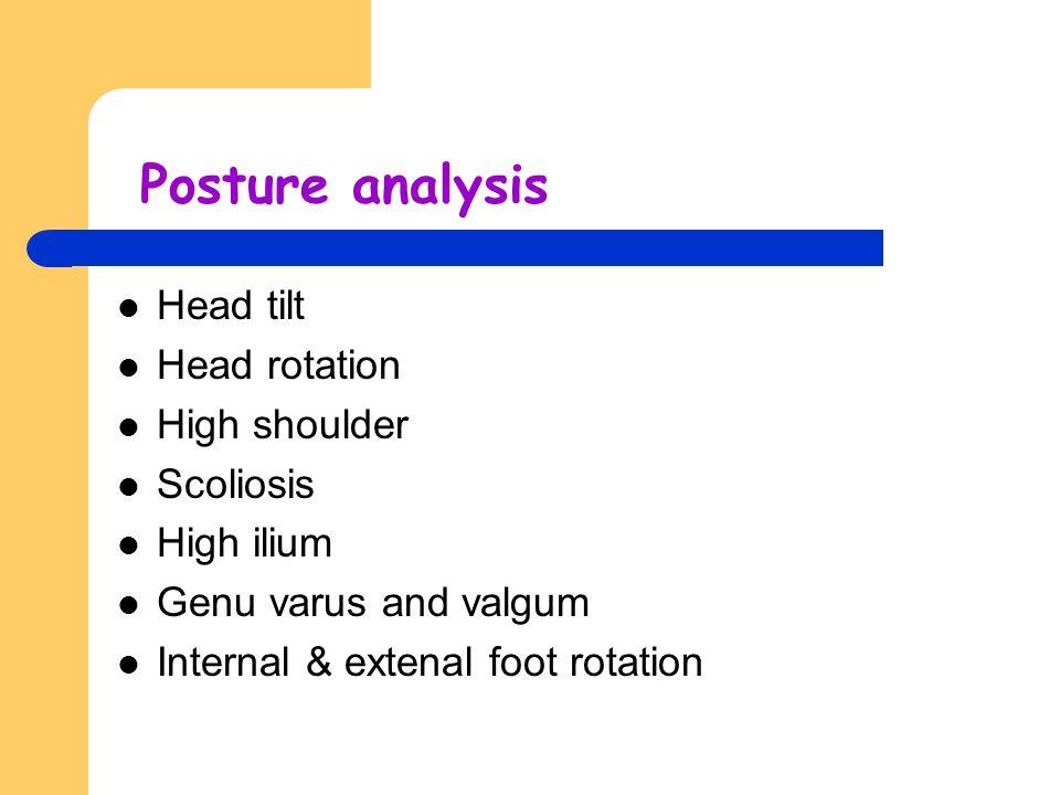 Posture analysis Head tilt Head rotation High shoulder Scoliosis High ilium Genu varus and valgum Internal & extenal foot rotation